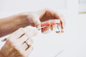 5 ways dentures will preserve your smile