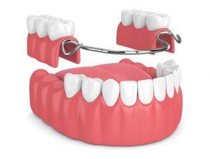 Benefits of Partial Dentures