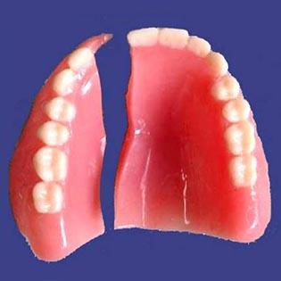Denture-Repair