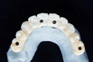 High Quality Dentures