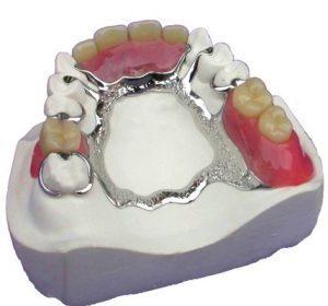 Partial Dentures Fredericksburg