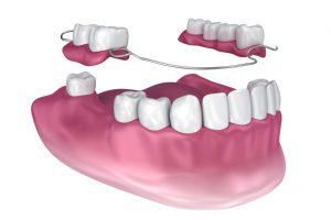 Partial Dentures vs Implants
