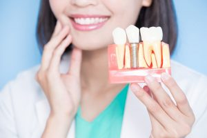 Replace Missing Teeth with Dentures