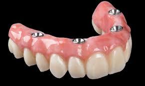 Implant Dentures Fredericksburg